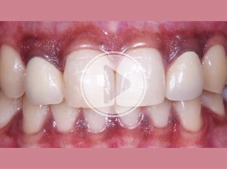 Glidewell Dental Symposium Recap